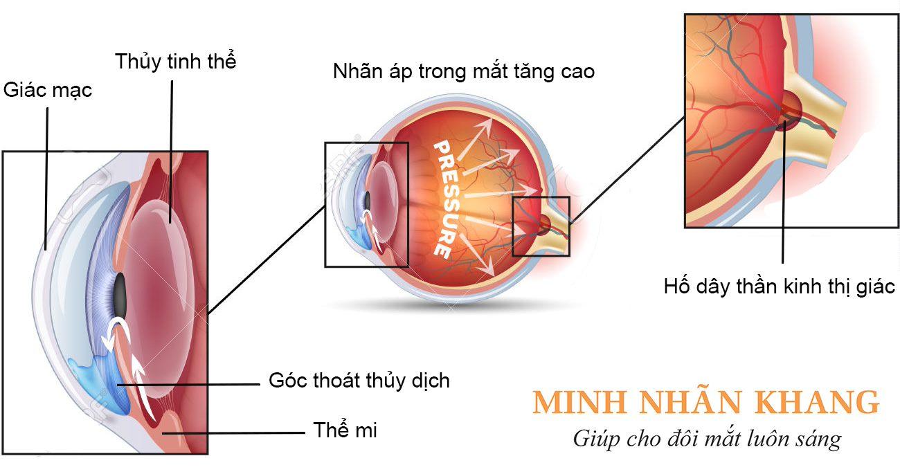 Dây thần kinh thị giác bị tổn thương khi nhãn áp tăng cao